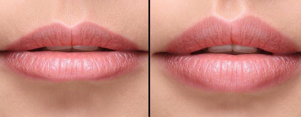 Técnica: Russian Lips, Aumento de Labios.